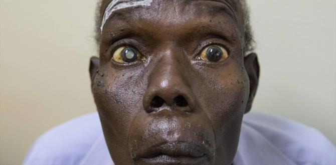 Yeryüzü Doktorları Uganda'da yüzlerce hastaya ışık oldu